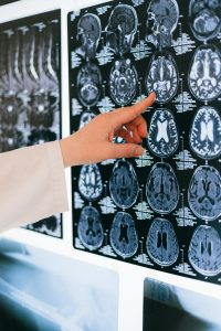 Scientist pointing at images of the brain.